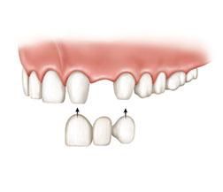 Zahnersatz mit Zahnbrücke.