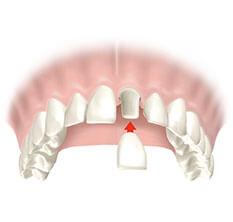 Ersatz eines Zahnes mit Krone (metallrahmiges Porzellan) preisbeispiele.